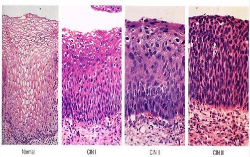 Антитела к тиреоидной пероксидазе выпадение волос