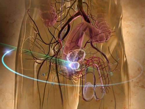 végbél daganat tünetei